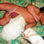Tampak bayi malang dengan kondisi isi perut di luar saat dirawat di RSUD Praya. (Foto: Akhyar Rosidi/Lomboktoday.co.id)